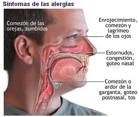 Remedios naturales contra la congestion nasal