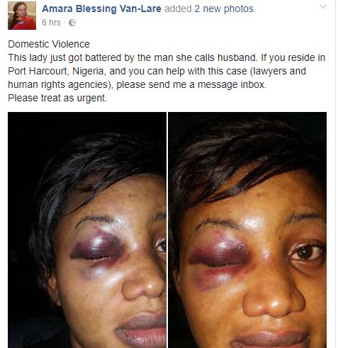 woman-battered-by-husband.1