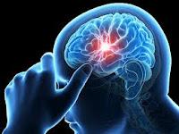 Cara Ampuh Mengobati Sakit Stroke