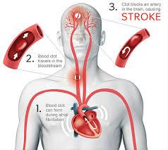 Gambar Penyebab stroke ringan dan pengobatanya