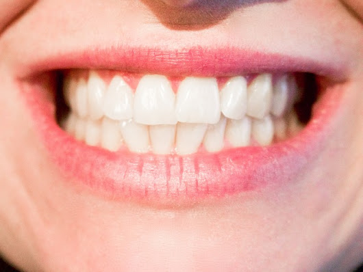 Taking Care Of Your Teeth To Have A Beautiful Smile