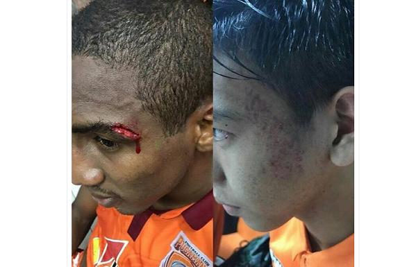 Lawan PS TNI Kemarin, Dua Pemain Borneo FC Luka Parah