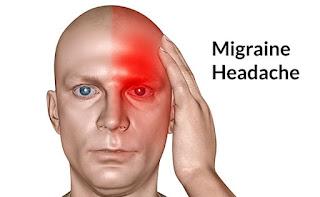 Gejala Dan Solusi Terbaik Pengobatan Migraine
