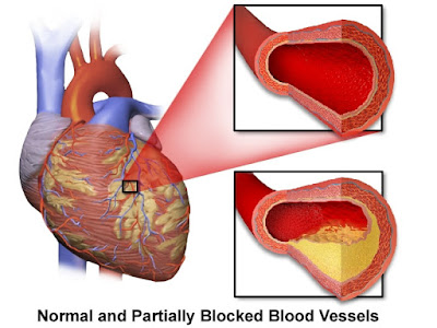 Coronary Artery Disease | Coronary Heart disease | Causes