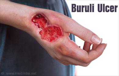 Resultado de imagem para Úlcera de Buruli