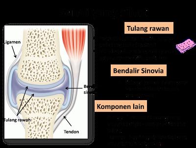 Sakit Lutut