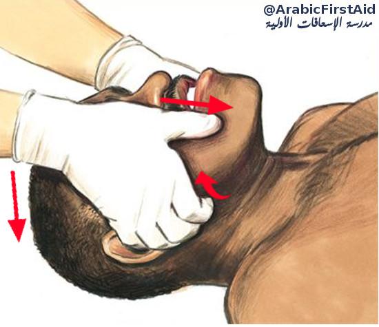بلع-اللسان-falling-back-of-the tongue