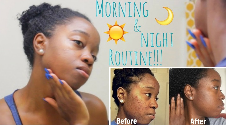 My Clear Skin Secrets and Acne Control Routine