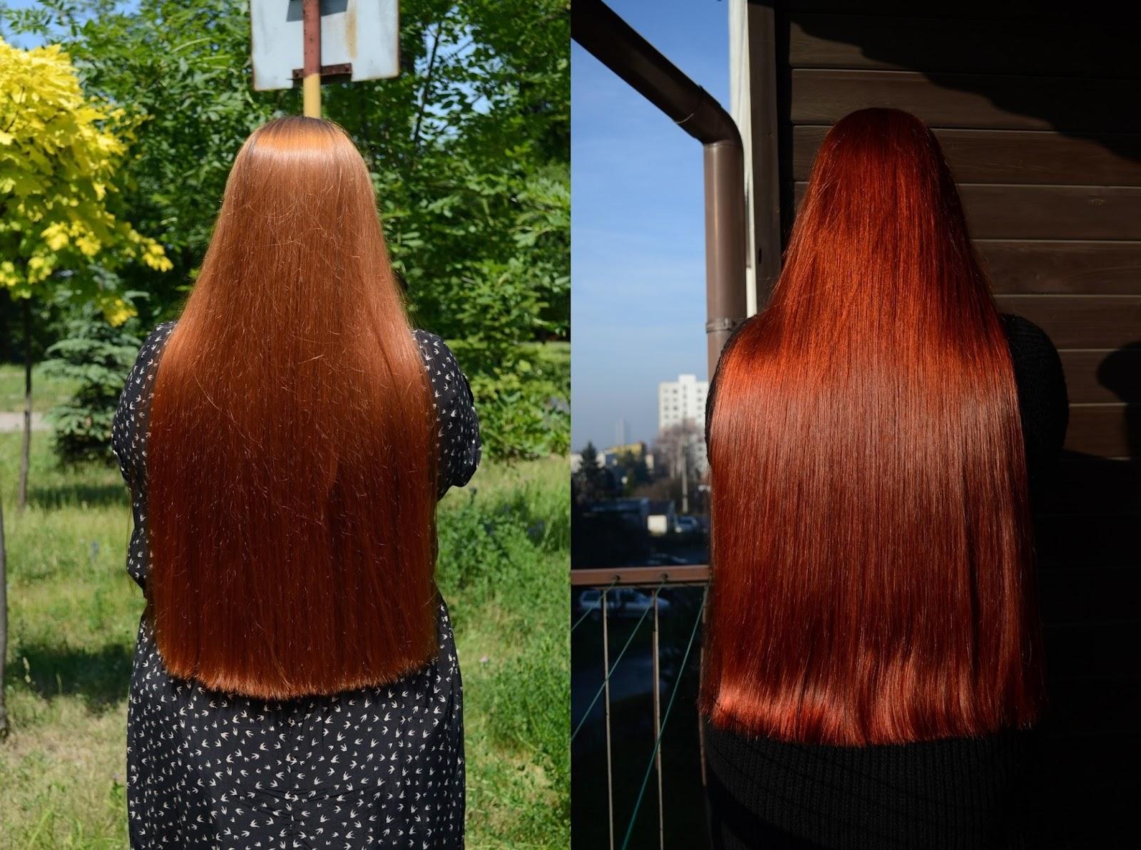 porost włosów, szybki porost włosów