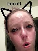 kittenplay kitten play painful bdsm tca peel burn sting sunburn ouch