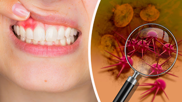 how to tell if you have mouth herpes