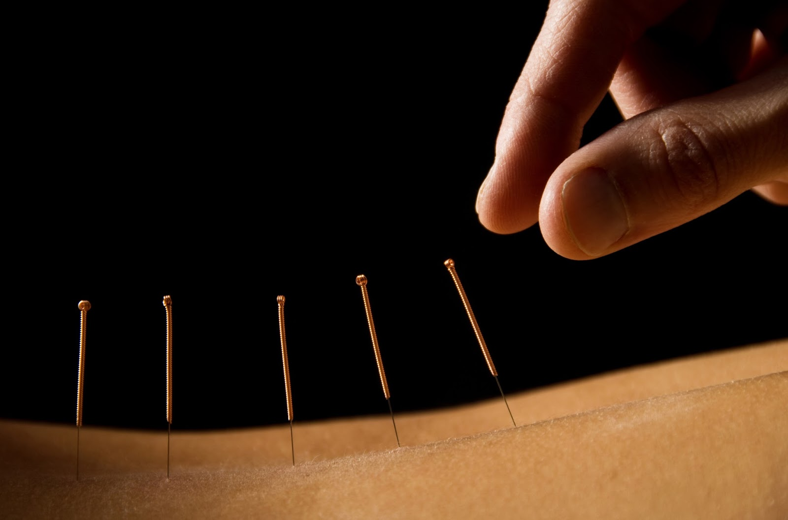acupuncture aculift methode celine claret coquet avis test