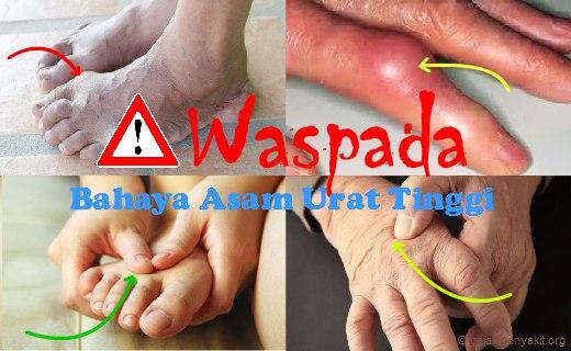 Berikut ini adalah bahaya asam urat tinggi yang dapat menimbulkan beberapa komplikasi penyakit serius. Cek di sini !