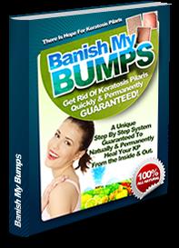 100% Natural Keratosis Pilaris Cure