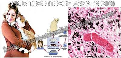 Pengobatan Alternatif Virus Toxo