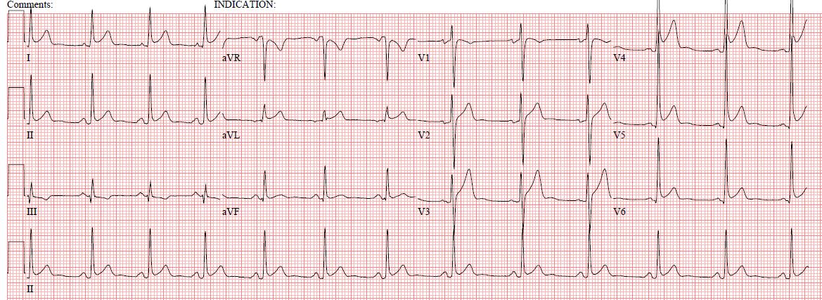 EKG HISTORY