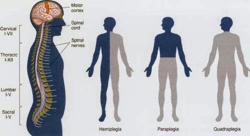 लकवे से पीड़ित व्यक्ति के लिए प्राकृतिक उपचार