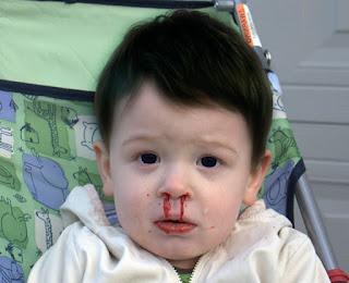 mimisan pada anak, penyebab dan Pengobatannya