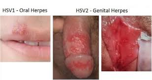 obat buat herpes zoster