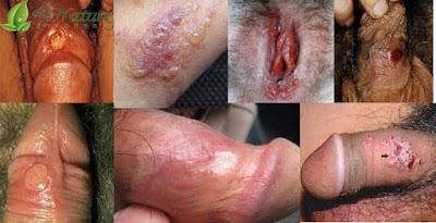 Obat Sipilis No 1 Paling Manjur Di Apotik