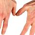 Pengertian Definisi Penyebab Dan Pengobatan Serta Gejala klinis Penyakit Dermatitis Atopik Menurut Ilmu Kedokteran