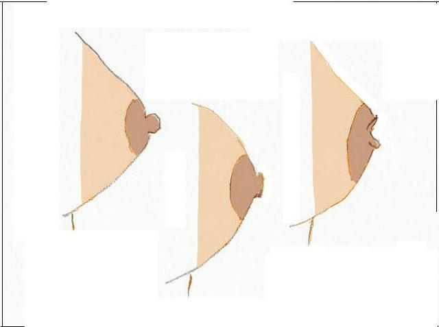 علاج تشقق والتهاب حلمة الثدي وأوجاع الثدي بالأعشاب