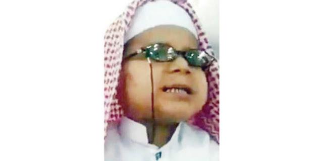 Balita Tunanetra Ini Hafal Seluruh Isi Al Qur'an Setelah Sering Dengarkan Bacaan Qur'an Lewat Radio
