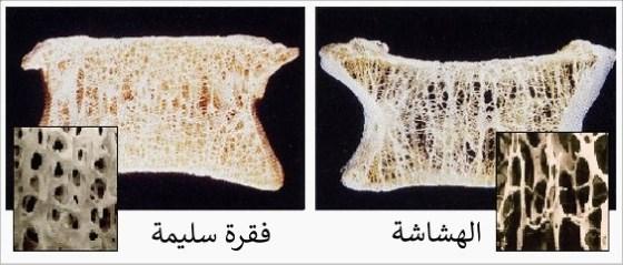 هشاشة عظام الفقرات