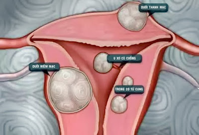 U xơ tử cung ngăn ngừa bằng cách nào-https://benhlynamkhoa115.blogspot.com/