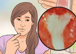 alat vital perempuan keluar darah