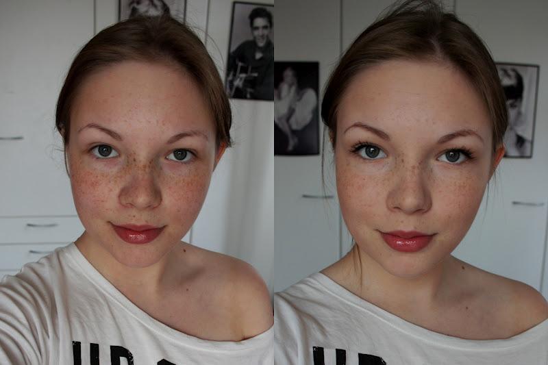 tummat silmänaluset pois ilman meikkiä