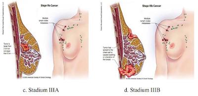 Tumor Payudara Stadium 3