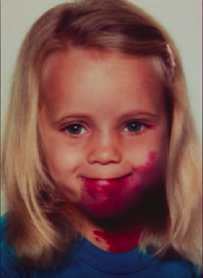 Bullies Called Her 'Purple People Eater' Because Of Birthmark But Her Transformation Is Amazing
