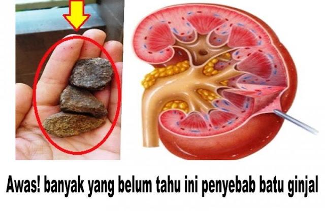 penyebab batu ginjal