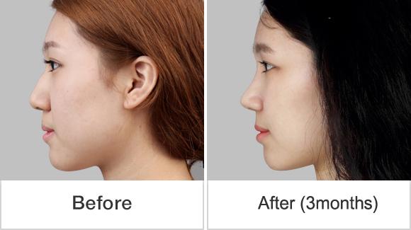 짱이뻐! - Through Korean Celebrities Rhinoplasty, My Nose Became Sharper