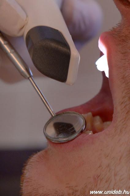 Orális szkennelés, 3D nyomtató és digitális lenyomatkészítés - már ezeket a modern technikákat is használják napjainkban a fogorvosok.