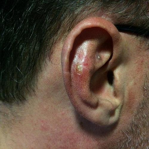 سرطان-الأذن