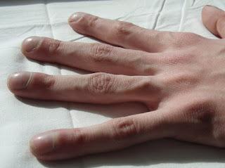 Phát hiện vảy nến qua dấu hiệu của móng tay