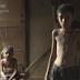 COMPÁRTELO - VÍDEO - El drama de la severa desnutrición infantil en Venezuela