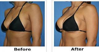 crema per aumentare il seno