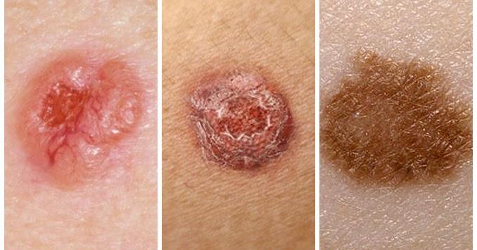 types de cancer de la peau sympt mes du cancer de la peau traitement du cancer de la peau. Black Bedroom Furniture Sets. Home Design Ideas