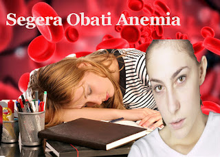 Anemia atau Kurang Darah