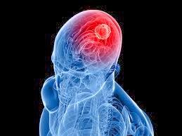 Brain Tumour Surgery