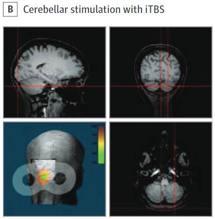 図:小脳 間欠的シータバーストTMS