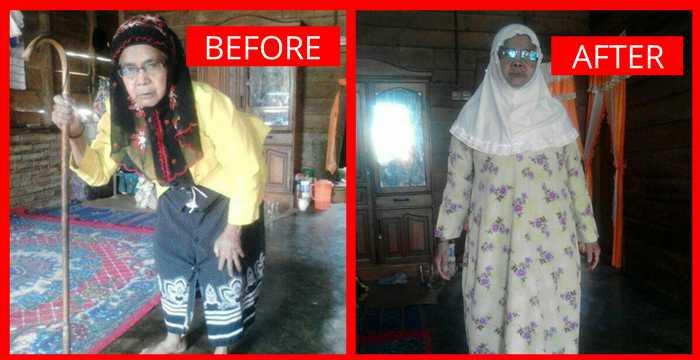 Bisnis Fkc Syariah - Testimoni Keropos Tulang