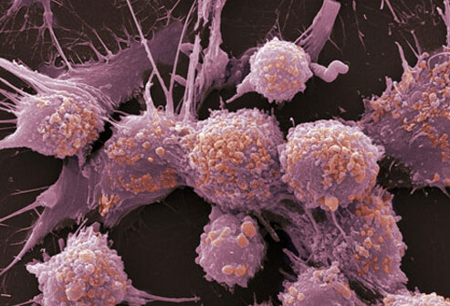 Prostate Cancer Cells - healthyinfo.org