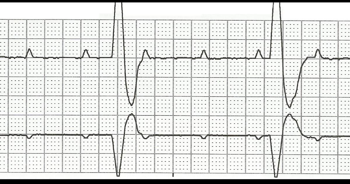Float Nurse: Practice EKG Rhythm Strips 195