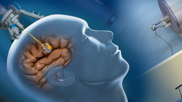 brain tumar detection