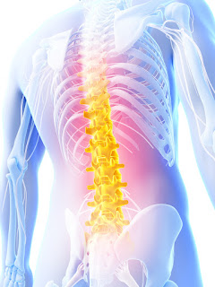 Spinal Discectomy Spinal Fusion Surgery