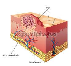 Humman Papiloma Virus